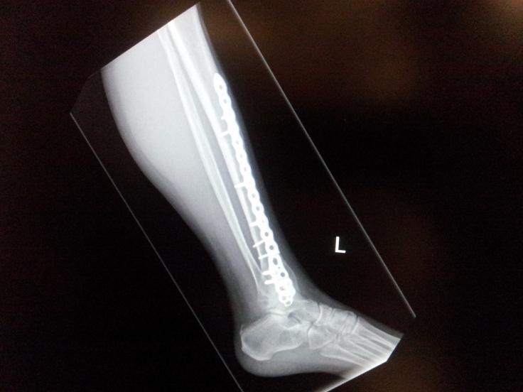 x-ray 3.jpg